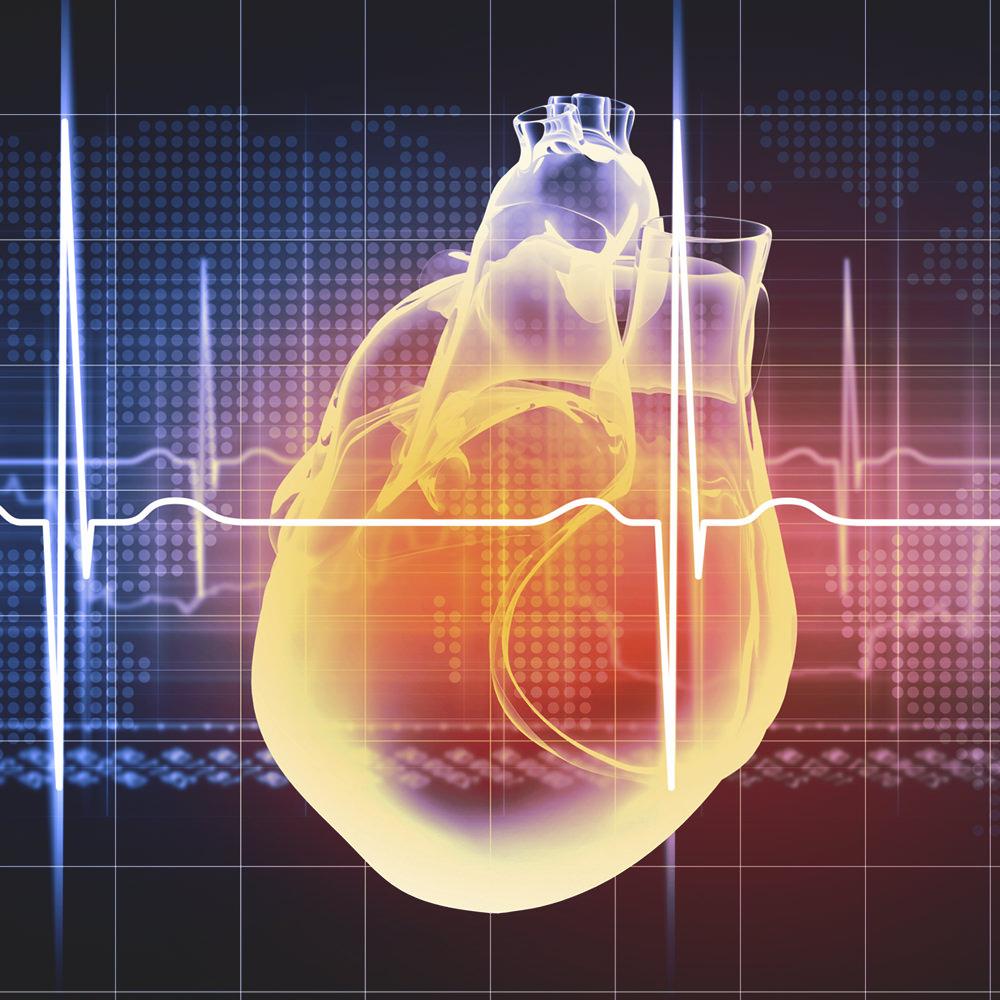 LEEV otthoni EKG és 24 órás kardiológiai felügyelet szolgáltatás